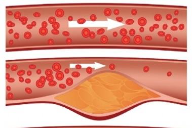 Triglycerid- & kolesterolskola